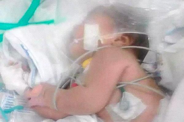 Девочка трех дней от роду пережила укусы смертоносного скорпиона