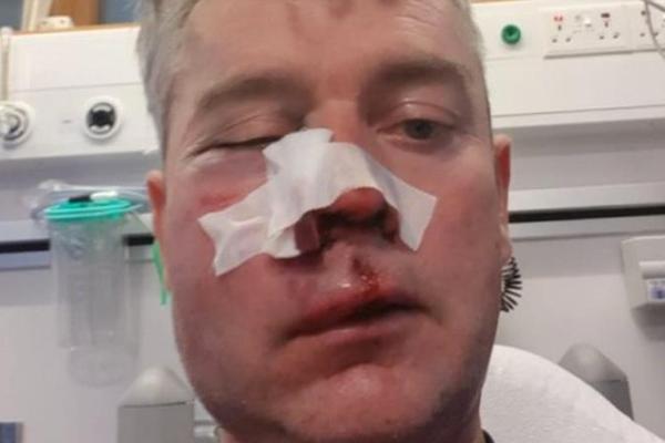 В Ирландии футболисты напали на судью и переломали ему кости